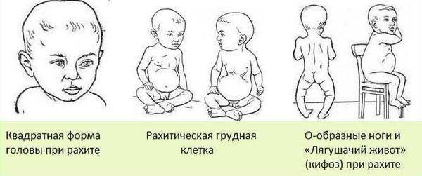 Фото рахита у ребенка в год