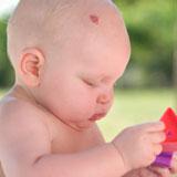 разновидности родимых пятен у новорожденных