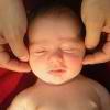 Наиболее распространённые родовые травмы головы