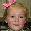 Медикаментозное лечение крапивницы у детей