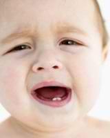 Проблемы при прорезывании зубов
