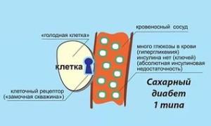 Ostry`e simptomy` detskogo saharnogo diabeta