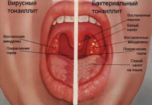 angina_simptomy