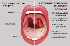 simptomy` anginy`