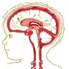 Detskii` tcerebral`ny`i` paralich lechenie