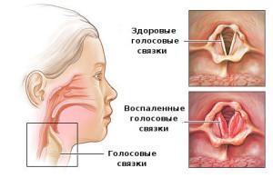 Simptomy` laringita u rebyonka