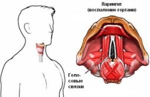 laringit