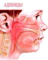 Adenoidy` u detei` simptomy`