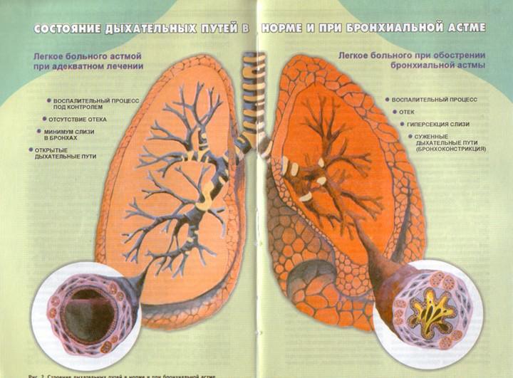 Долихосигма запор лечение у детей