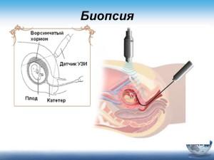 Mediko-geneticheskoe konsul`tirovanie beremennoi` zhenshchiny`