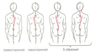 skolioz-1