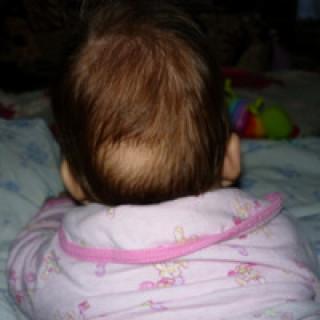Simptomy` obly`seniia u detei`