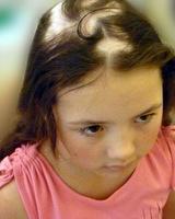 alopeciya-u-detej-1