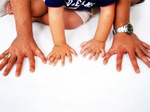 Полидактилия у детей