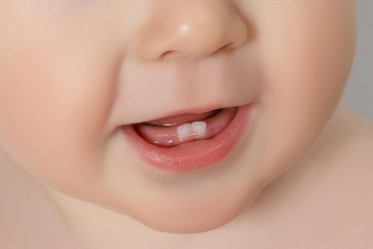 Во сколько у детей лезут зубы фото